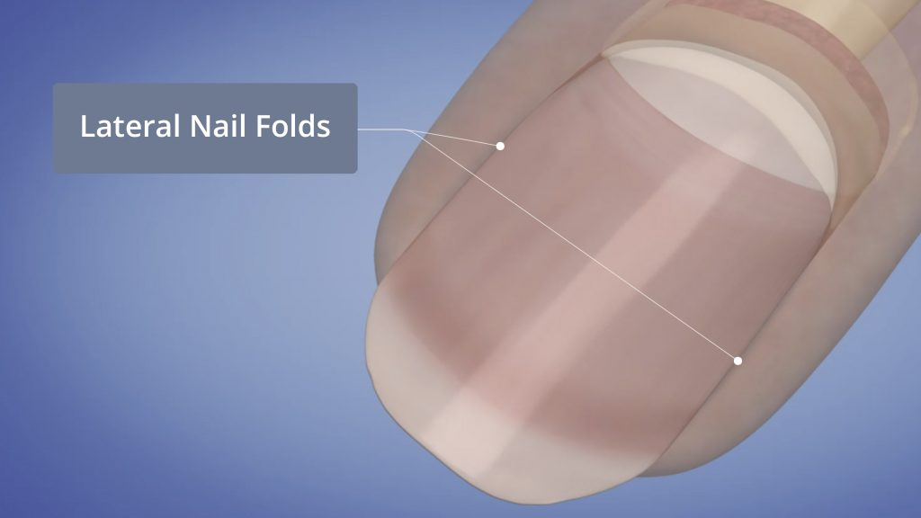 Lateral Nail Folds
