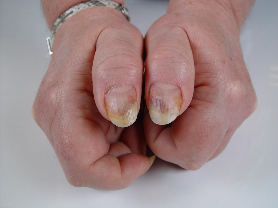 Splinter haemorrhage