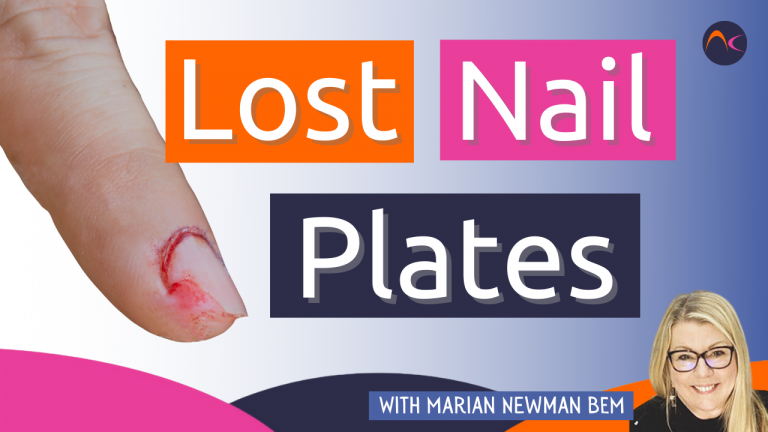 Lost nail plate